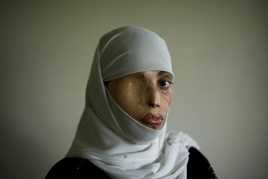 Irum Saeed, 30, poses for a photograph at her office at the Urdu University of Islamabad, Pakistan, Thursday, July 24, 2008. Irum was burnt on her face, back and shoulders twelve years ago when a boy whom she rejected for marriage threw acid on her in the middle of the street. She has undergone plastic surgery 25 times to try to recover from her scars. (AP Photo/Emilio Morenatti)
